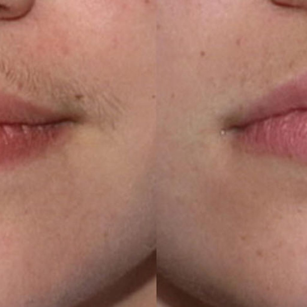 66-gal-laser_hair_removal_of_lip
